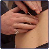 Order Acupuncture