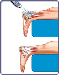 Order Shockwave Therapy