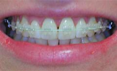 Tooth colour brackets
