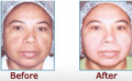 Treatment for Pigmentation